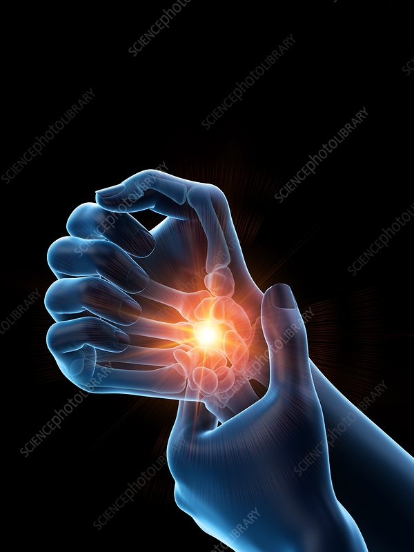Woman with a painful wrist, illustration
