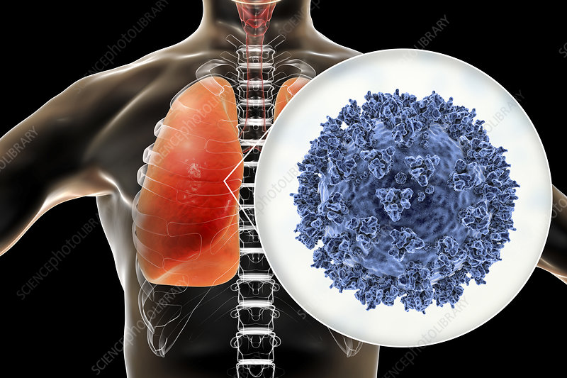 Coronavirus disease of the lungs, conceptual illustration