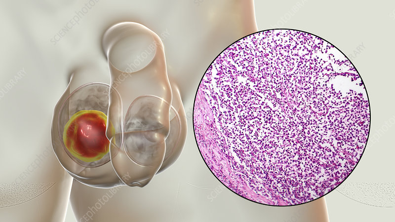 Testicular cancer, illustration and light micrograph