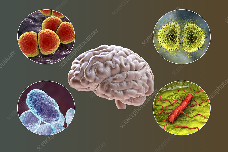 Causes of bacterial meningitis, illustration