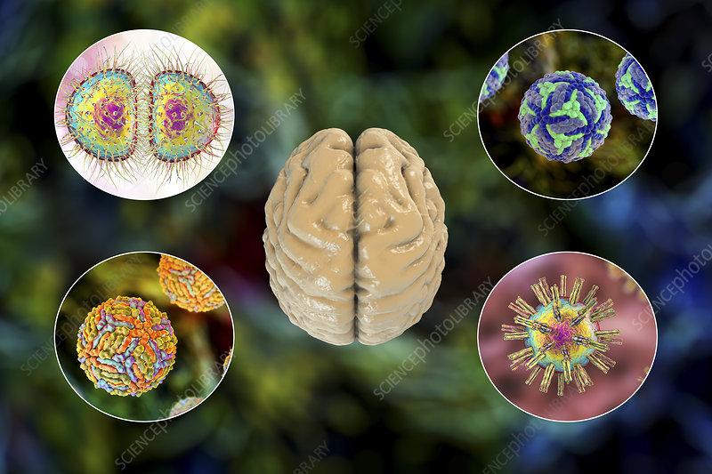 Brain infections, illustration