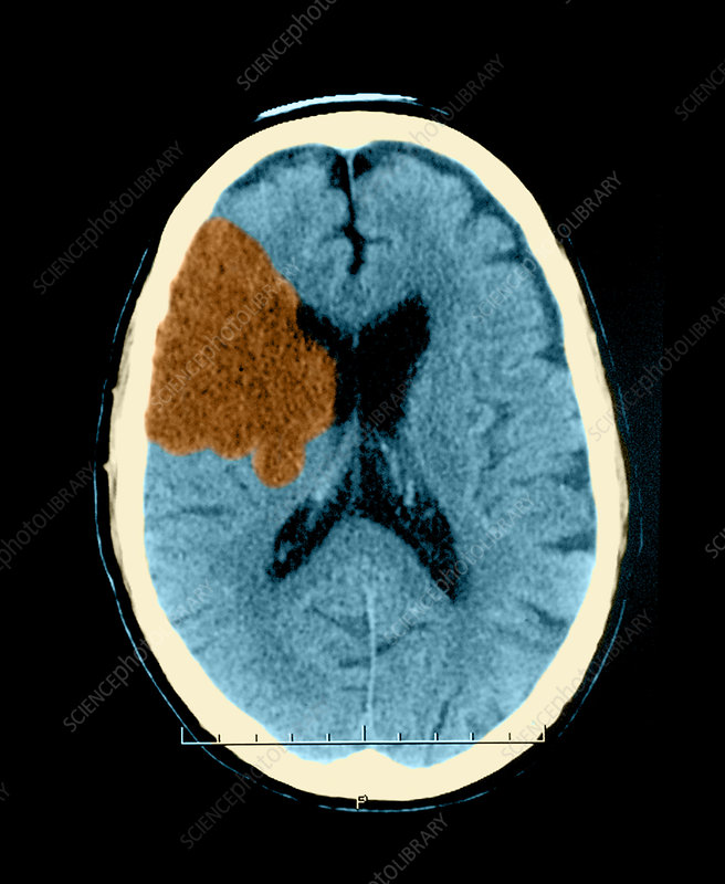 CT of Stroke