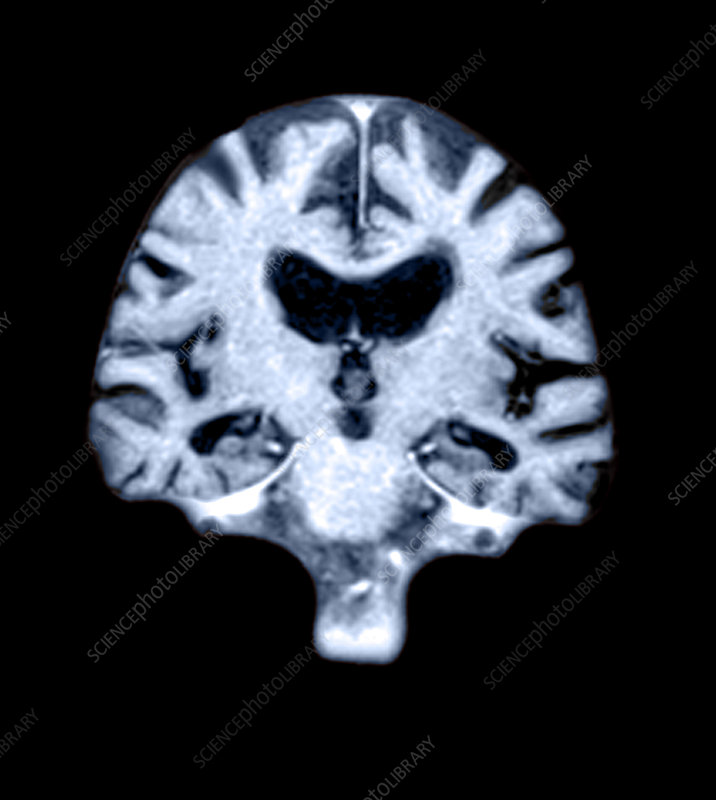 MRI of Brain With Alzheimer's Disease