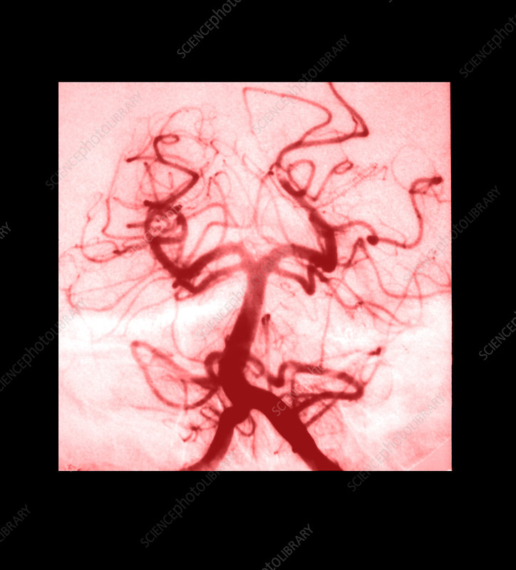 Angiogram of Embolus in Cerebral Artery