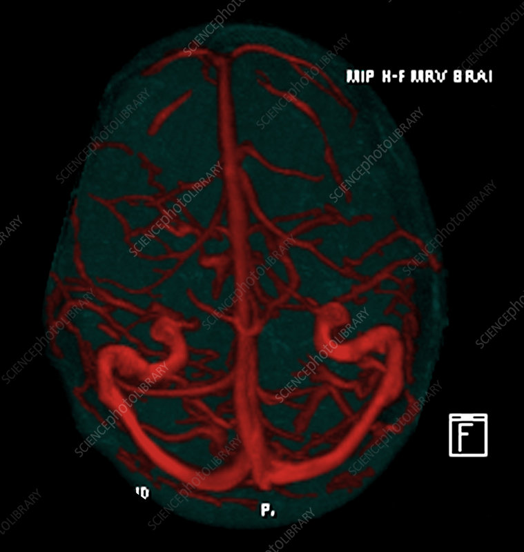 Intracranial Magnetic Resonance Venogram