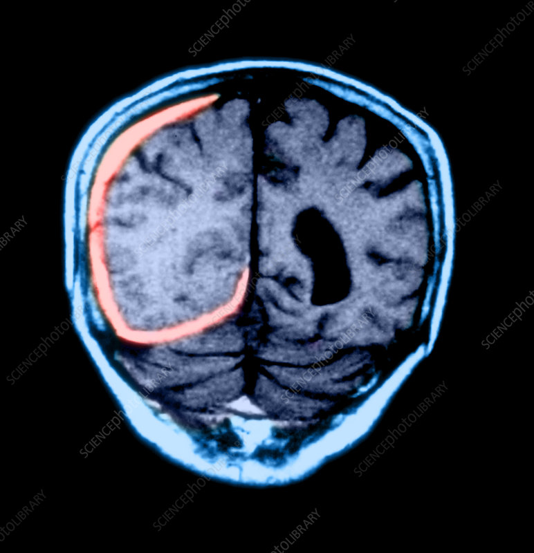 MRI of Head Trauma