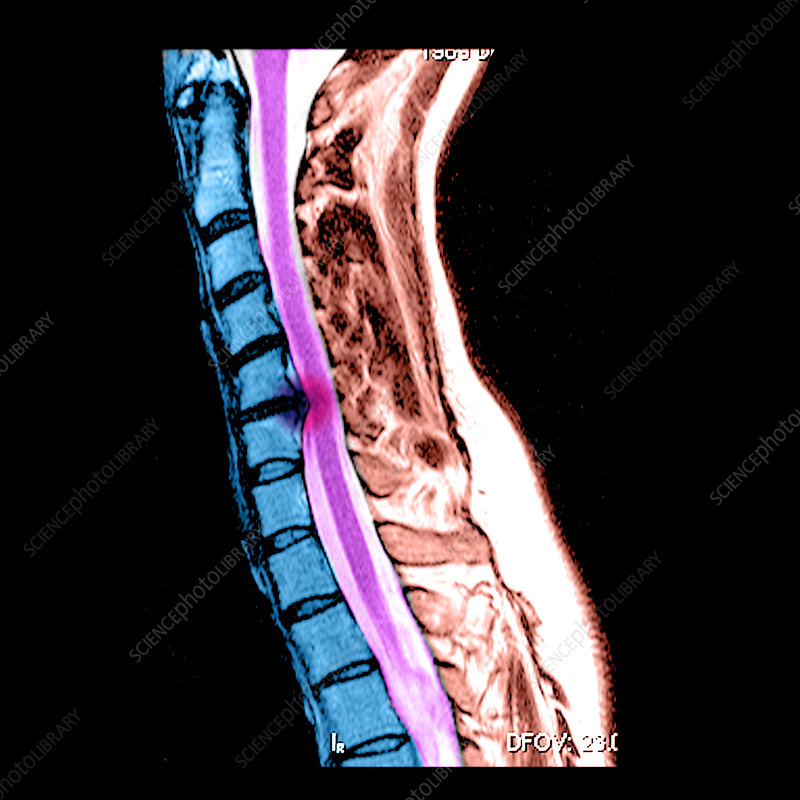 Herniated Disc in Cervical Spine