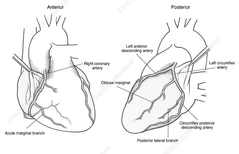 Illustration of Coronary Arteries