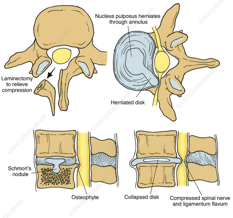 Illustration of Spinal Disk Pathologies