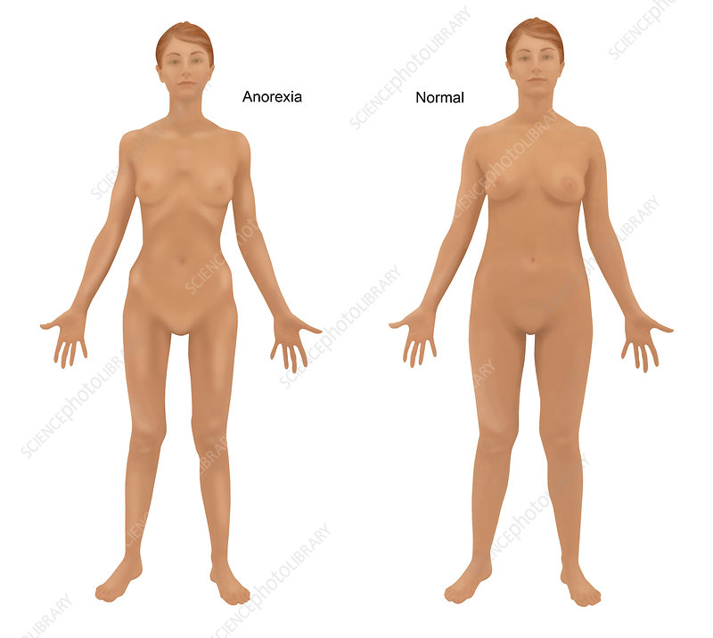 anorexia nervosa stock image c024 9550 science photo library