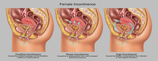 Types of Incontinence in Female Anatomy