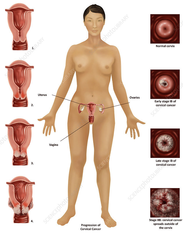 Cervical Cancer, Illustration