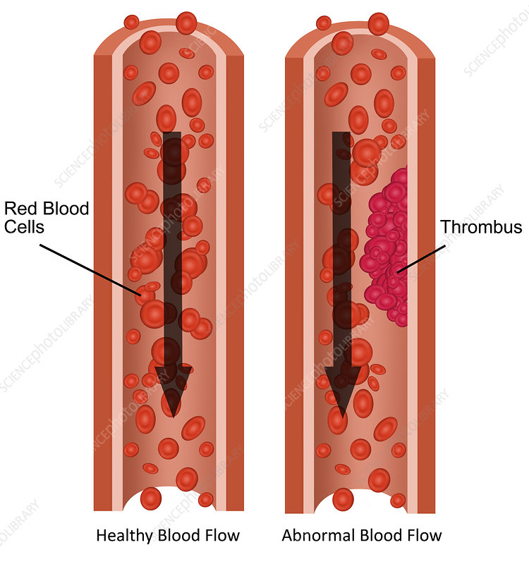 Blood Flow, Illustration