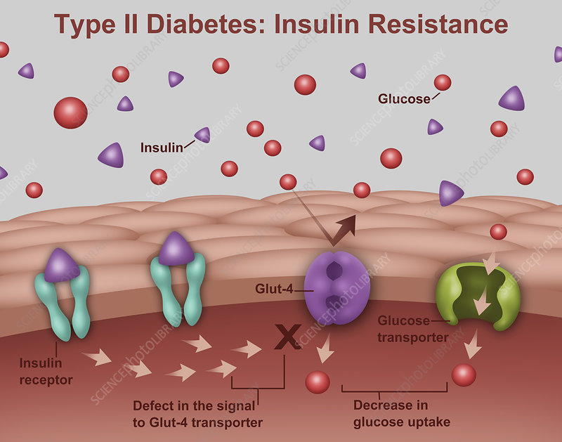 Type 2 Diabetes, Illustration