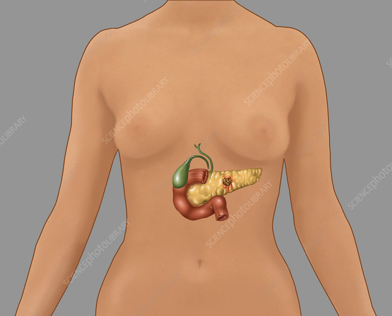 Pancreatic Cancer, Illustration