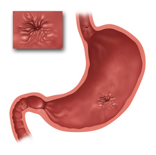 Stomach Ulcers, Illustration