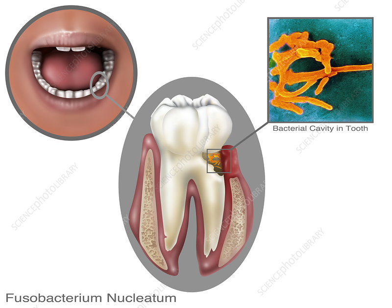 Oral Infection, Illustration