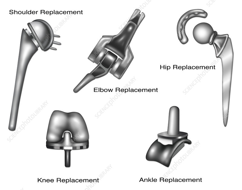 Joint Replacement, Illustration