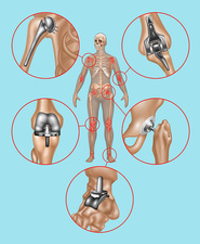 Joint Replacements, Illustration