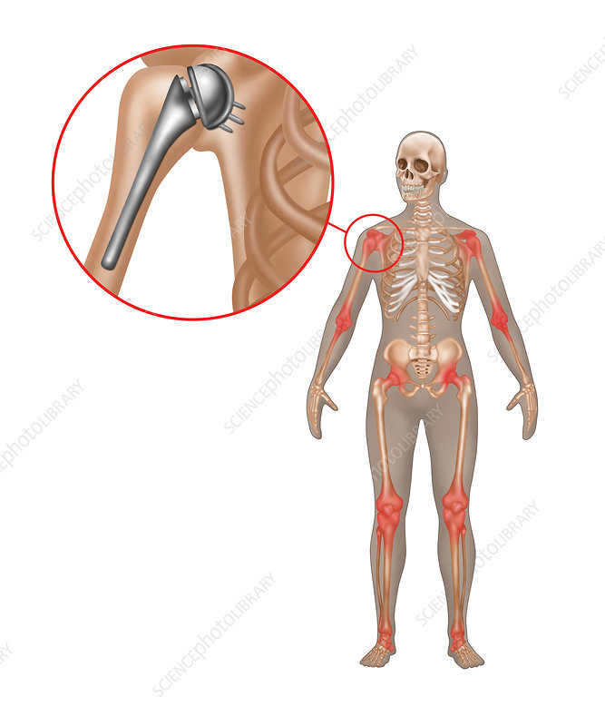 Shoulder Joint Replacement, Illustration