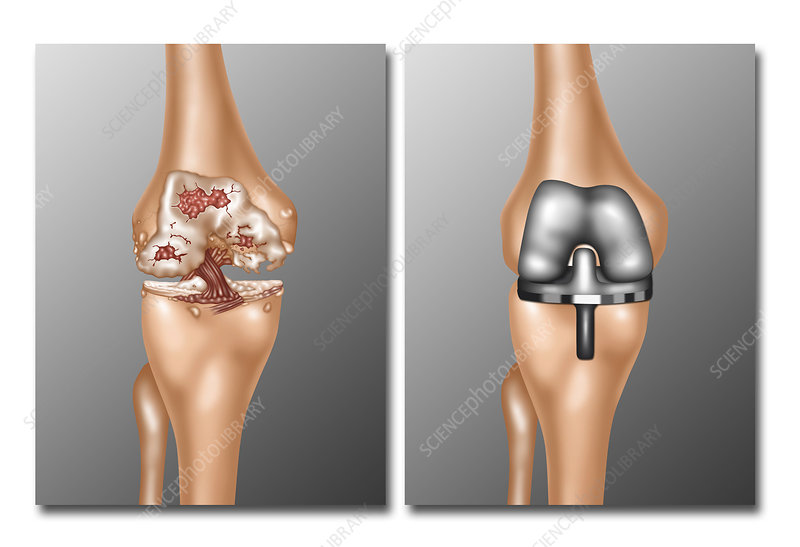 Knee Joint Replacement, Illustration