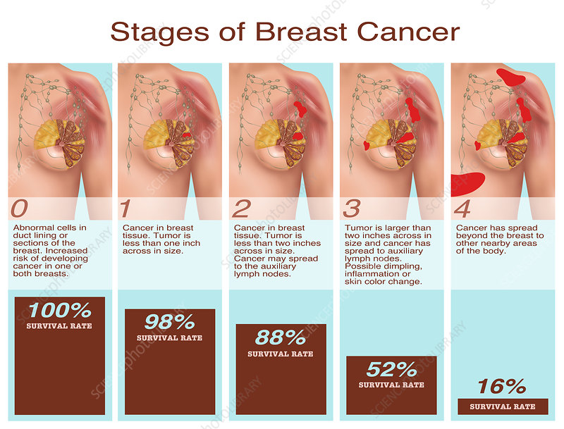 Breast Cancer Stages, Illustration