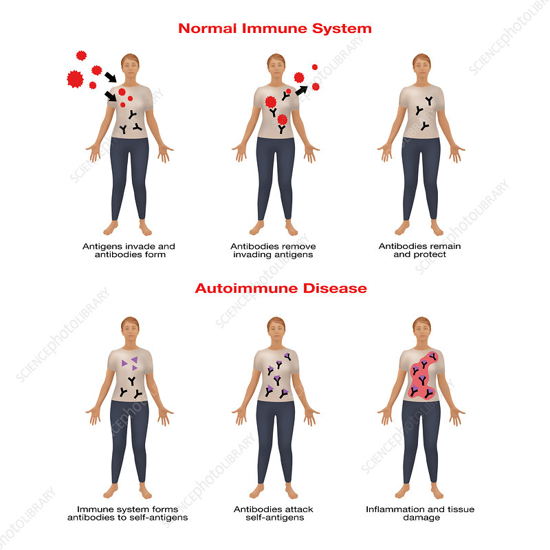 Autoimmune Disease, Illustration