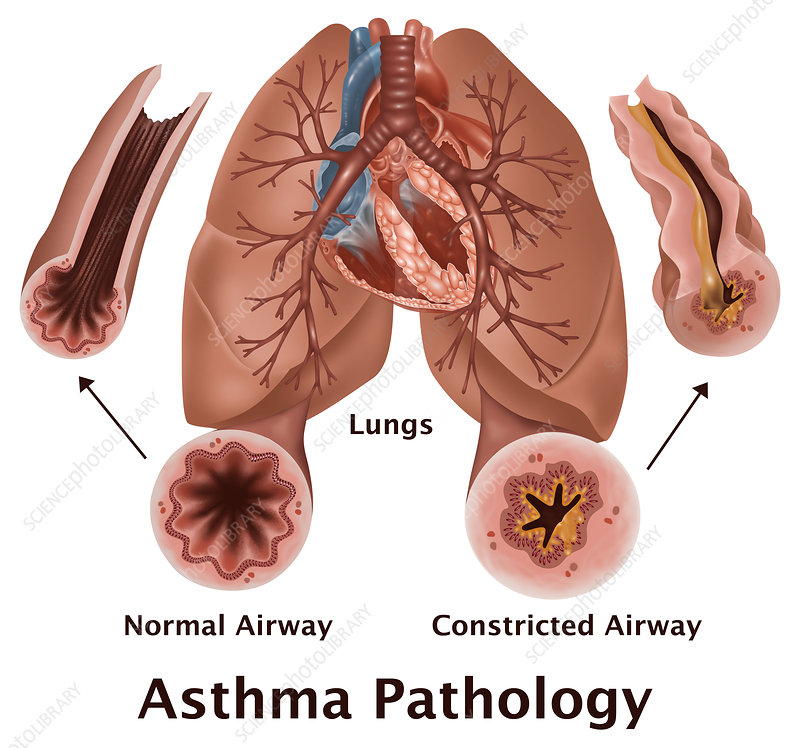 Asthma Pathology, illustration