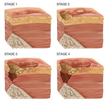 4 Stages of a Bedsore, Illustration