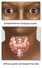 Graves Disease, Illustration
