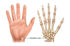 Ganglion Cyst, Illustration
