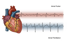 Illustration of Irregular Heartbeats