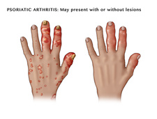 Psoriatic Arthritis with and without Lesions