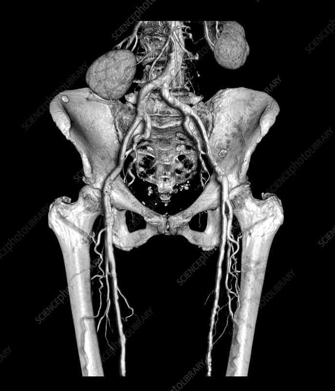 Pelvis and Upper legs with Arteriosclerosis