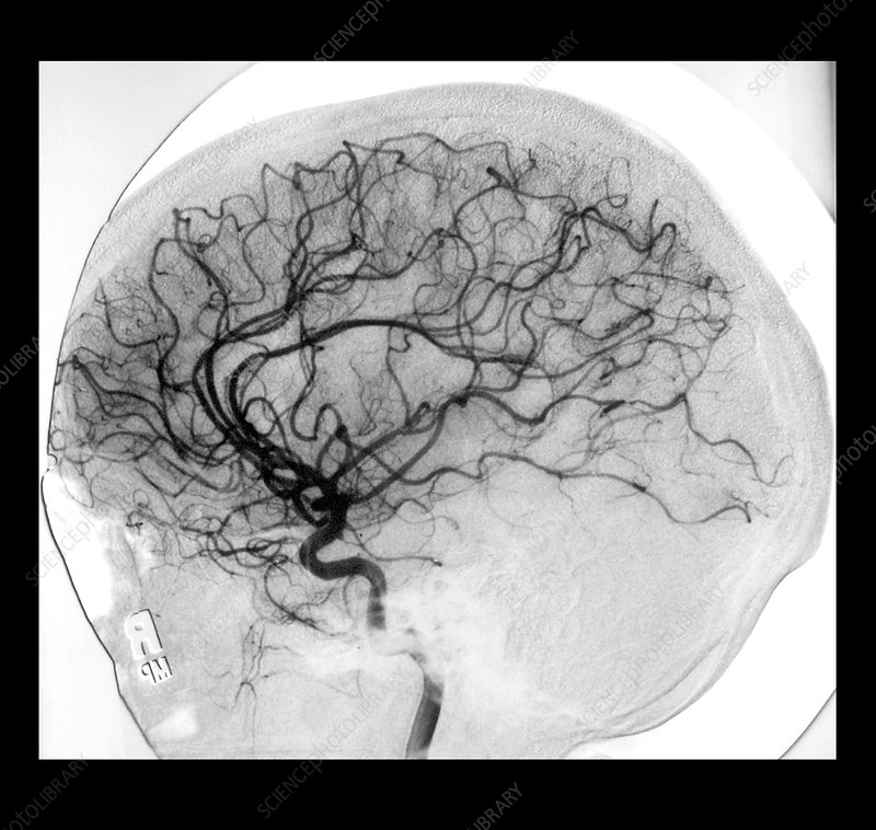 Cerebral Angiogram