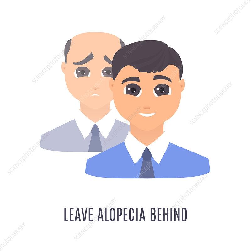 Male alopecia treatment, conceptual illustration