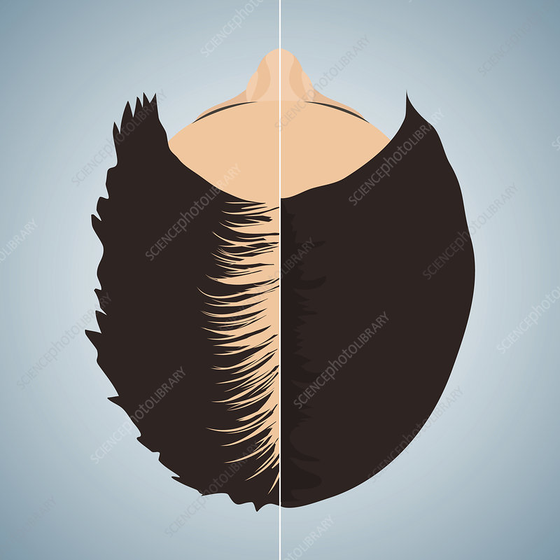Hair loss treatment for women, conceptual illustration
