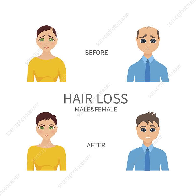 Male and female pattern baldness, illustration