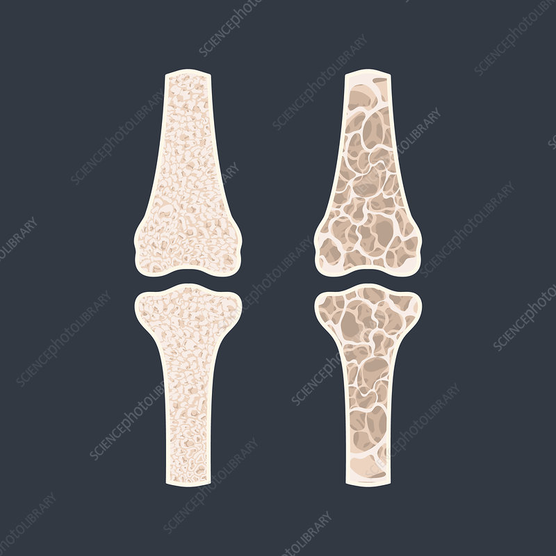 Osteoporosis, conceptual illustration
