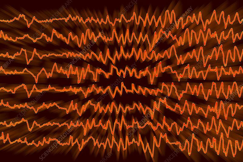 Brain waves in migraine, illustration