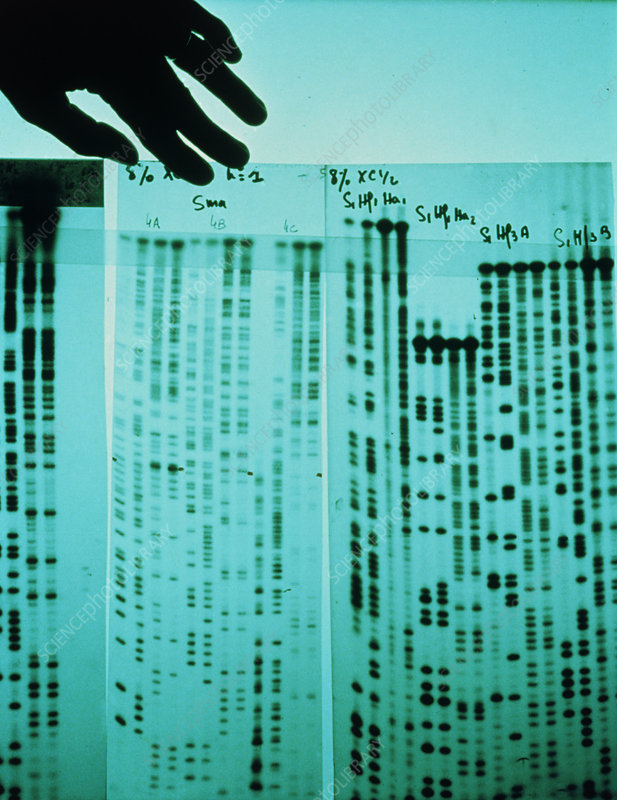 DNA sequencing autoradiogram against light box