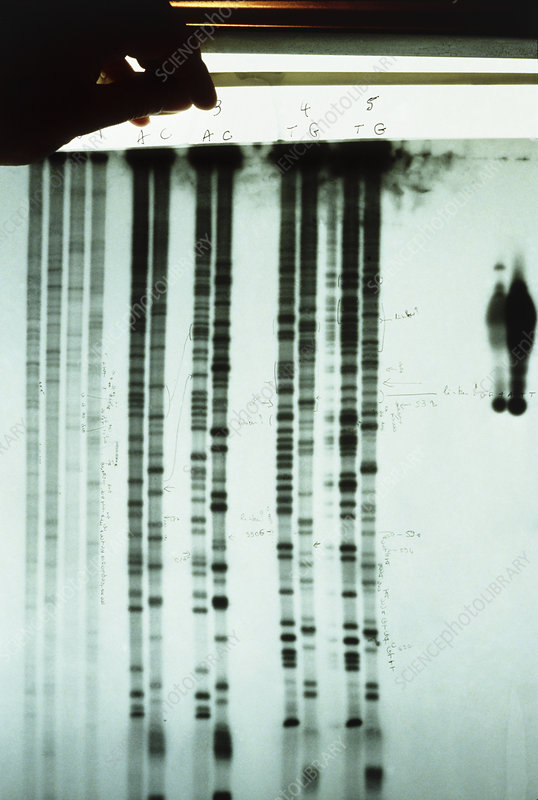 Scientist inspecting DNA sequencing autoradiogram