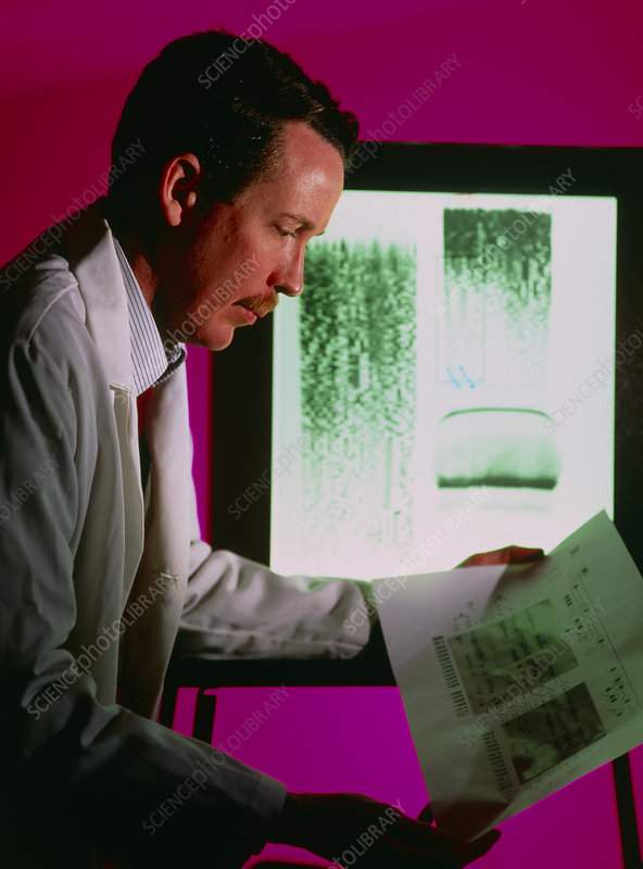 Research scientist examining DNA autoradiograms