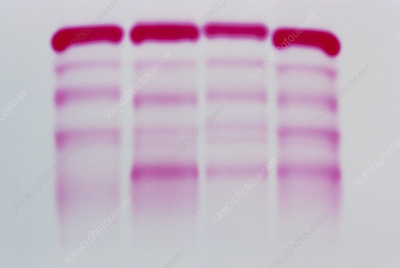 Electrophoresis of human blood serum