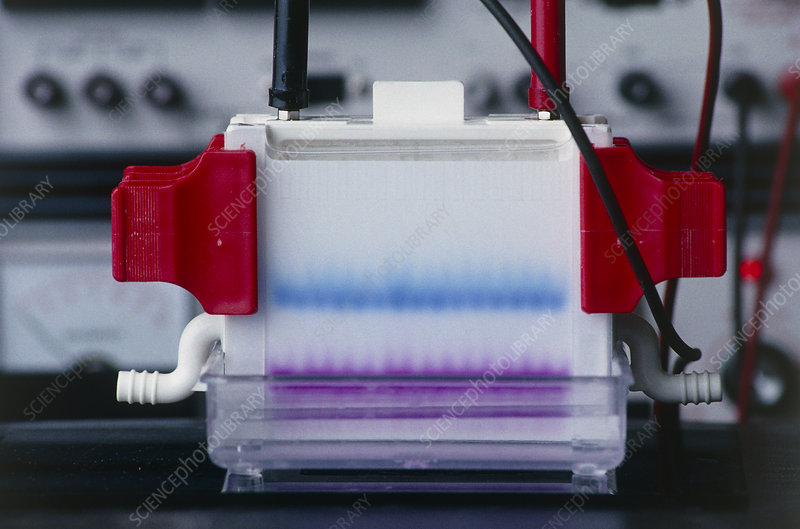 Electrophoresis gel with stained DNA fragments