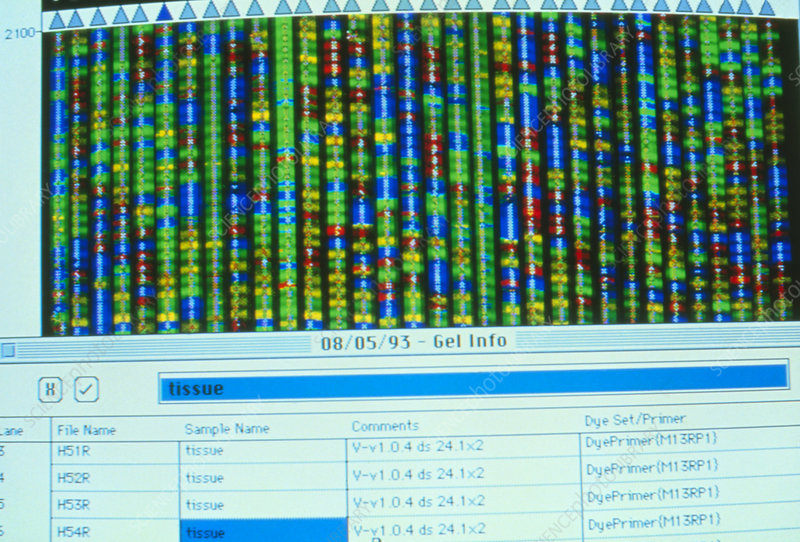 Genome research: autoradiogram of sequenced cDNA
