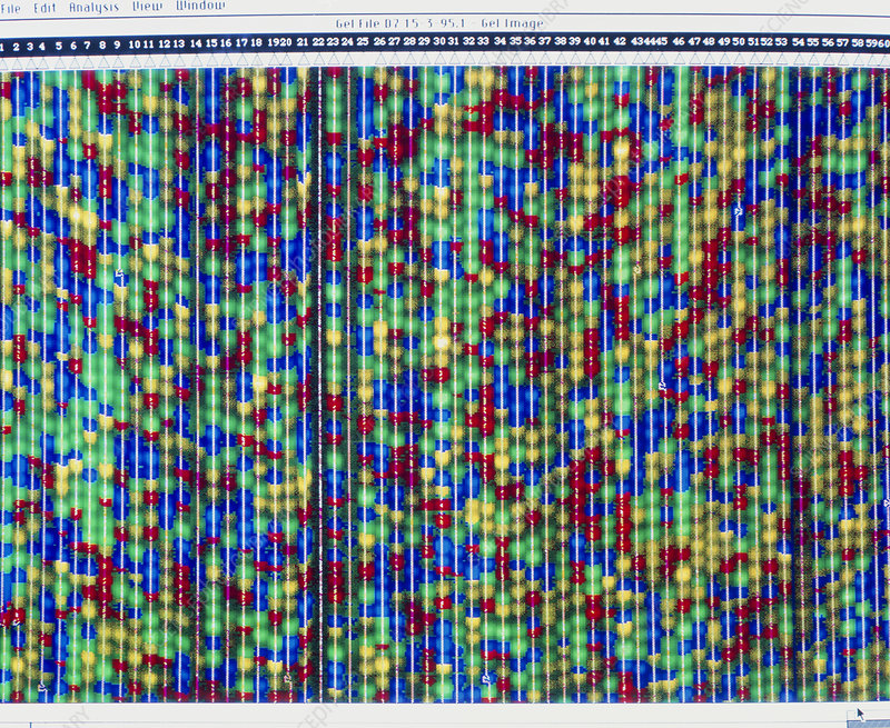Computer screen display of DNA sequencing pattern