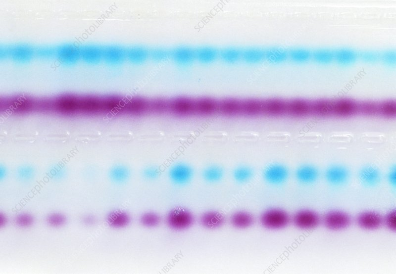 Samples of DNA being separated by an agarose gel
