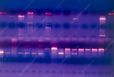 DNA fragments in gel stained with Ethidium Bromide