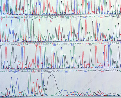 Computer display of a human gene sequence